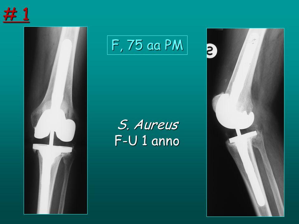 S. Aureus F-U 1 anno F, 75 aa PM # 1