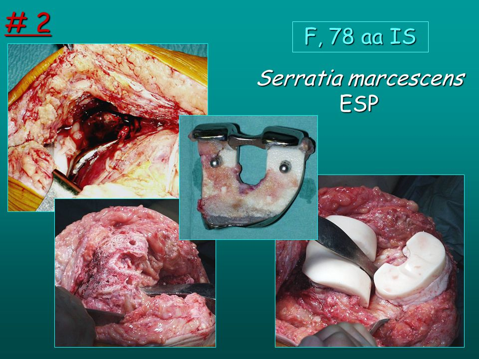 Serratia marcescens ESP F, 78 aa IS # 2