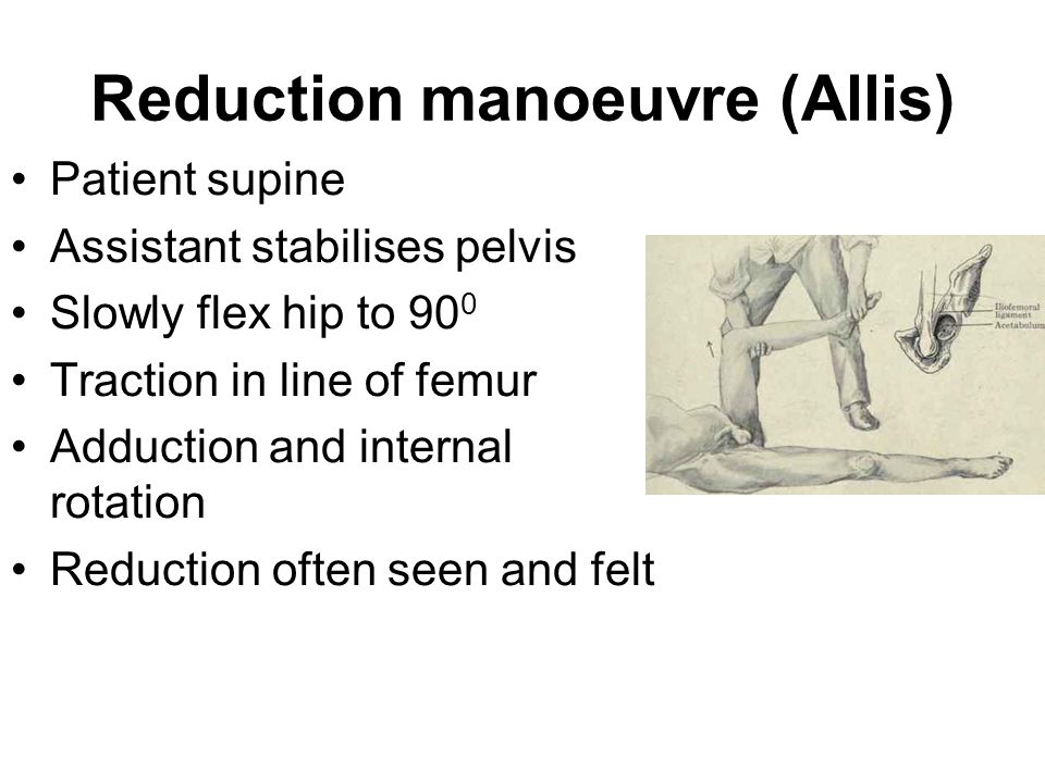 Reduction manoeuvre (Allis) Patient supine Assistant stabilises pelvis Slowly flex hip to 90 0 Traction in line of femur Adduction and internal rotati