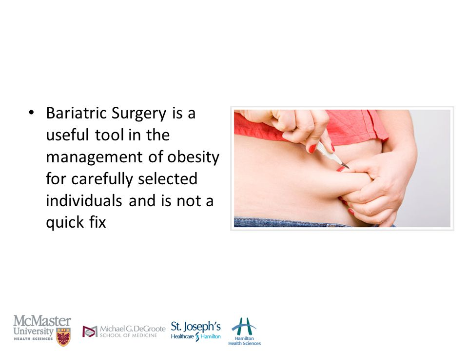 Bariatric Surgery is a useful tool in the management of obesity for carefully selected individuals and is not a quick fix