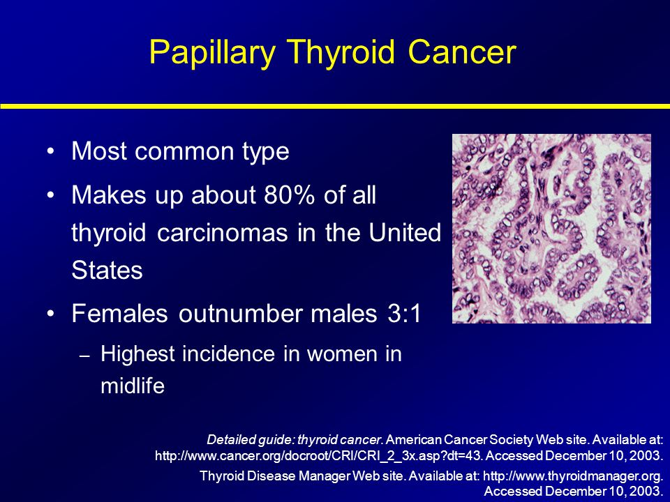 Papillary Thyroid Cancer Most common type Makes up about 80% of all thyroid carcinomas in the United States Females outnumber males 3:1 – Highest inci