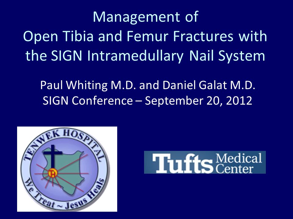 Management of Open Tibia and Femur Fractures with the SIGN Intramedullary Nail System Paul Whiting M.D. and Daniel Galat M.D. SIGN Conference – Septem