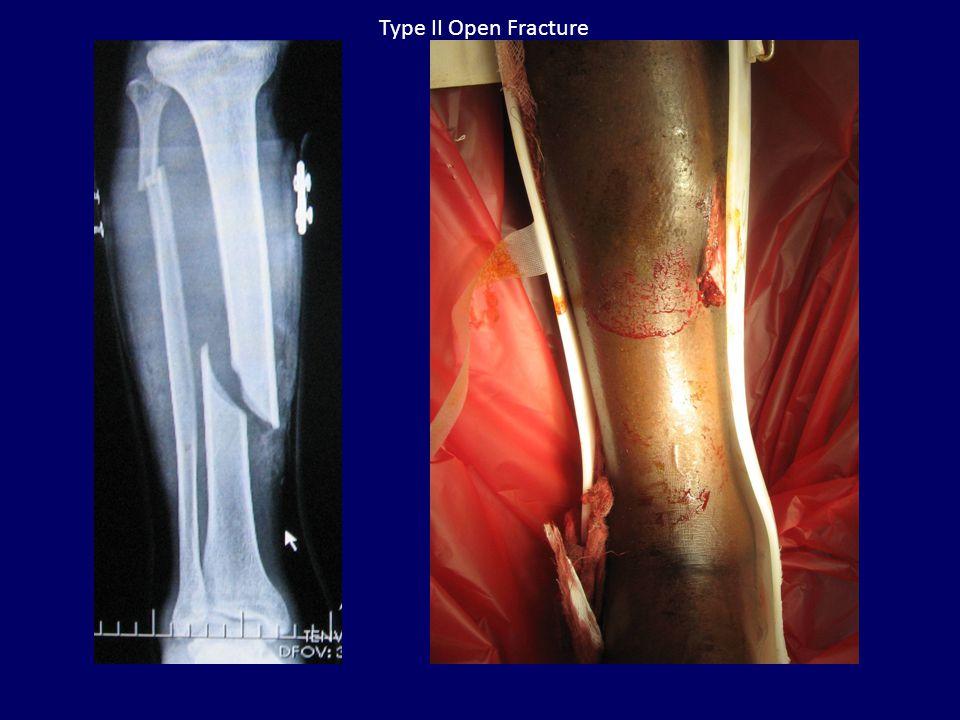 Type II Open Fracture