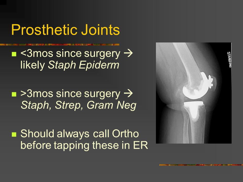 Prosthetic Joints <3mos since surgery  likely Staph Epiderm >3mos since surgery  Staph, Strep, Gram Neg Should always call Ortho before tapping these in ER