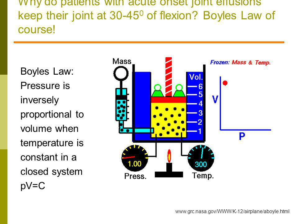 Why do patients with acute onset joint effusions keep their joint at 30-45 0 of flexion? Boyles Law of course! www.grc.nasa.gov/WWW/K-12/airplane/aboy