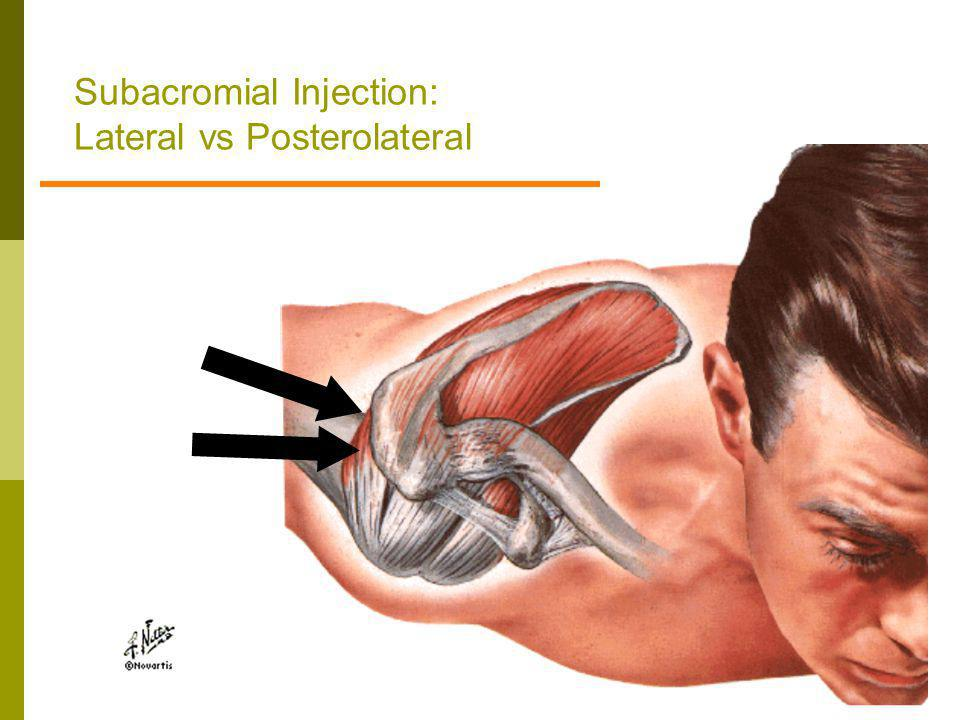 Subacromial Injection: Lateral vs Posterolateral