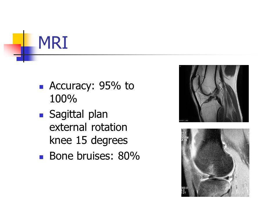 MRI Accuracy: 95% to 100% Sagittal plan external rotation knee 15 degrees Bone bruises: 80%