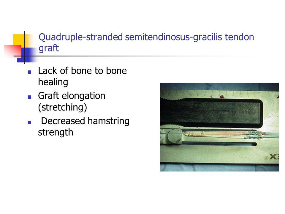 Quadruple-stranded semitendinosus-gracilis tendon graft Lack of bone to bone healing Graft elongation (stretching) Decreased hamstring strength