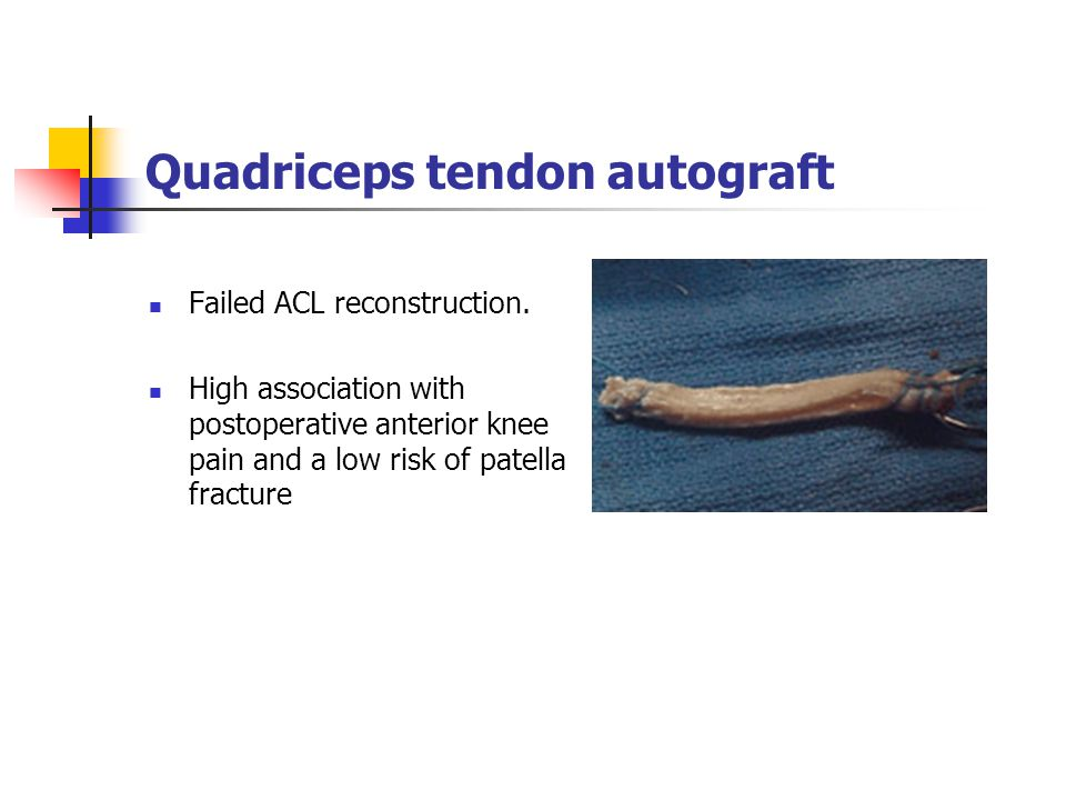 Quadriceps tendon autograft Failed ACL reconstruction. High association with postoperative anterior knee pain and a low risk of patella fracture