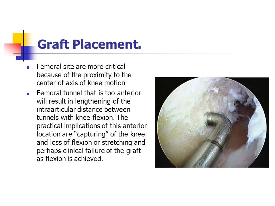 Graft Placement. Femoral site are more critical because of the proximity to the center of axis of knee motion Femoral tunnel that is too anterior will