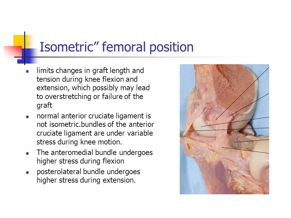 "Isometric"" femoral position limits changes in graft length and tension during knee flexion and extension, which possibly may lead to overstretching or"