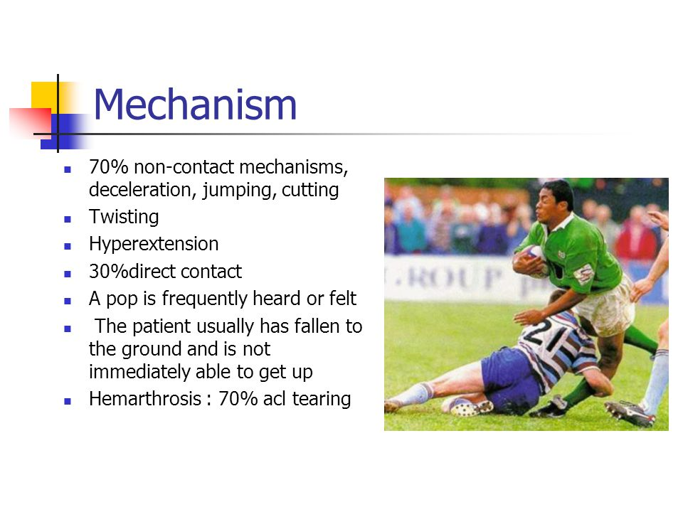 Mechanism 70% non-contact mechanisms, deceleration, jumping, cutting Twisting Hyperextension 30%direct contact A pop is frequently heard or felt The p
