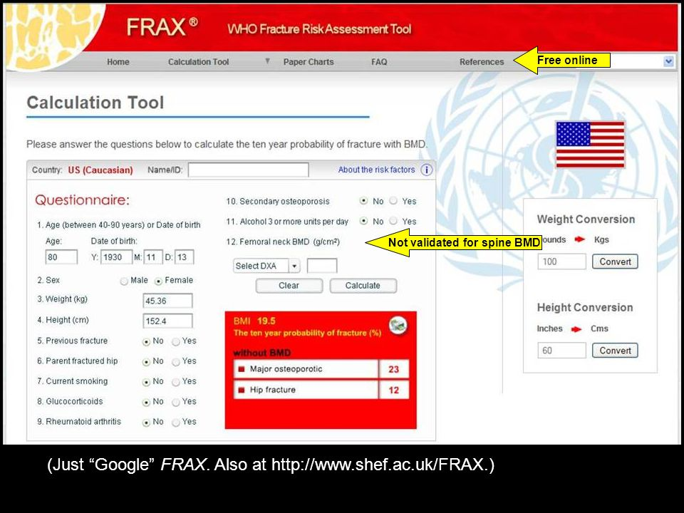 Free online Not validated for spine BMD (Just Google FRAX. Also at http://www.shef.ac.uk/FRAX.)