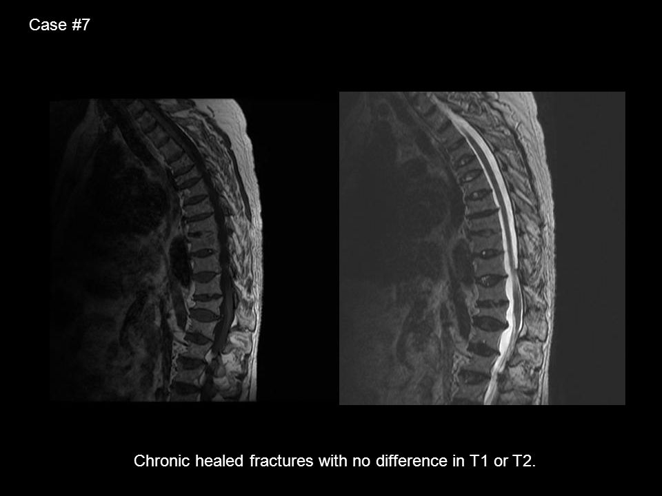 Case #7 Chronic healed fractures with no difference in T1 or T2.