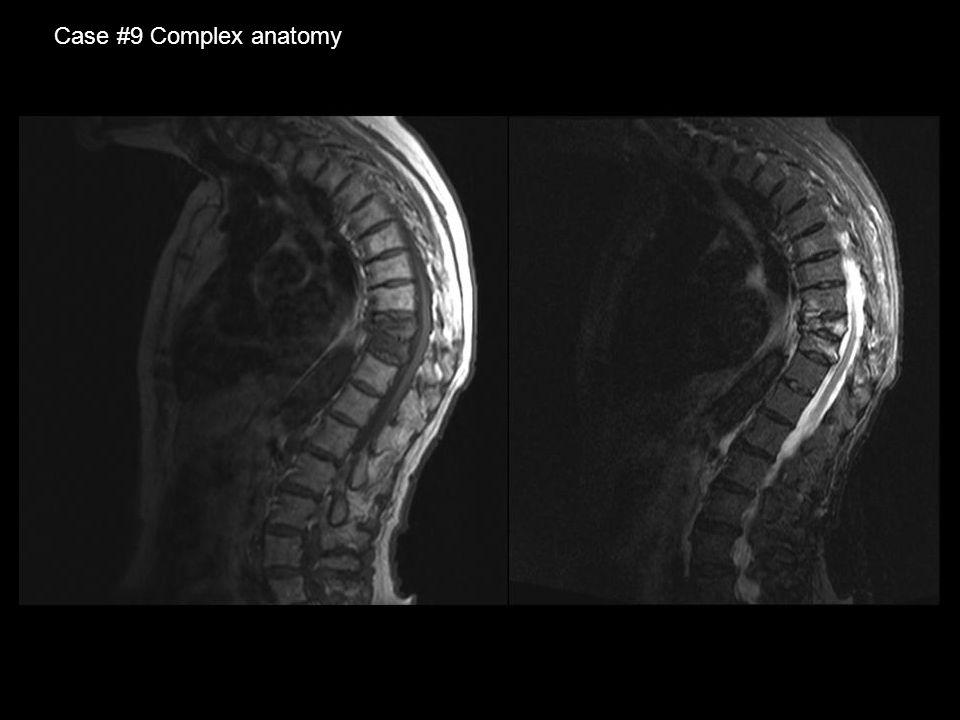 Case #9 Complex anatomy