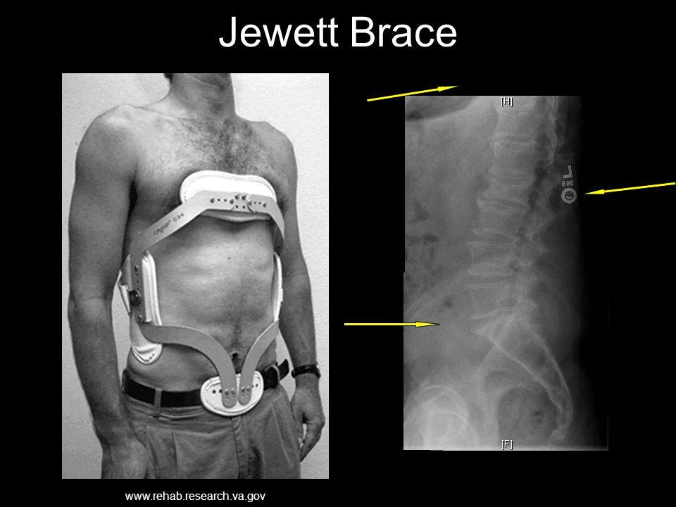 Jewett Brace www.rehab.research.va.gov