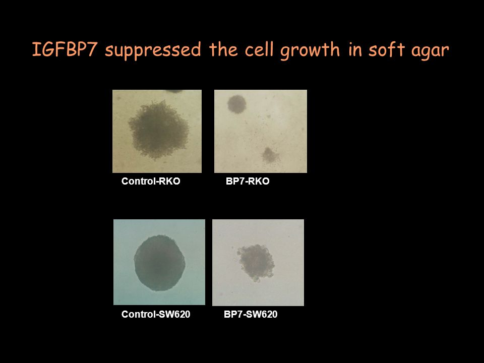 Control-RKOBP7-RKO Control-SW620BP7-SW620 IGFBP7 suppressed the cell growth in soft agar