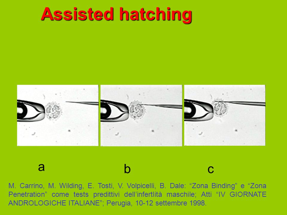 "Assisted hatching a bc M. Carrino, M. Wilding, E. Tosti, V. Volpicelli, B. Dale: ""Zona Binding"" e ""Zona Penetration"" come tests predittivi dell'infert"