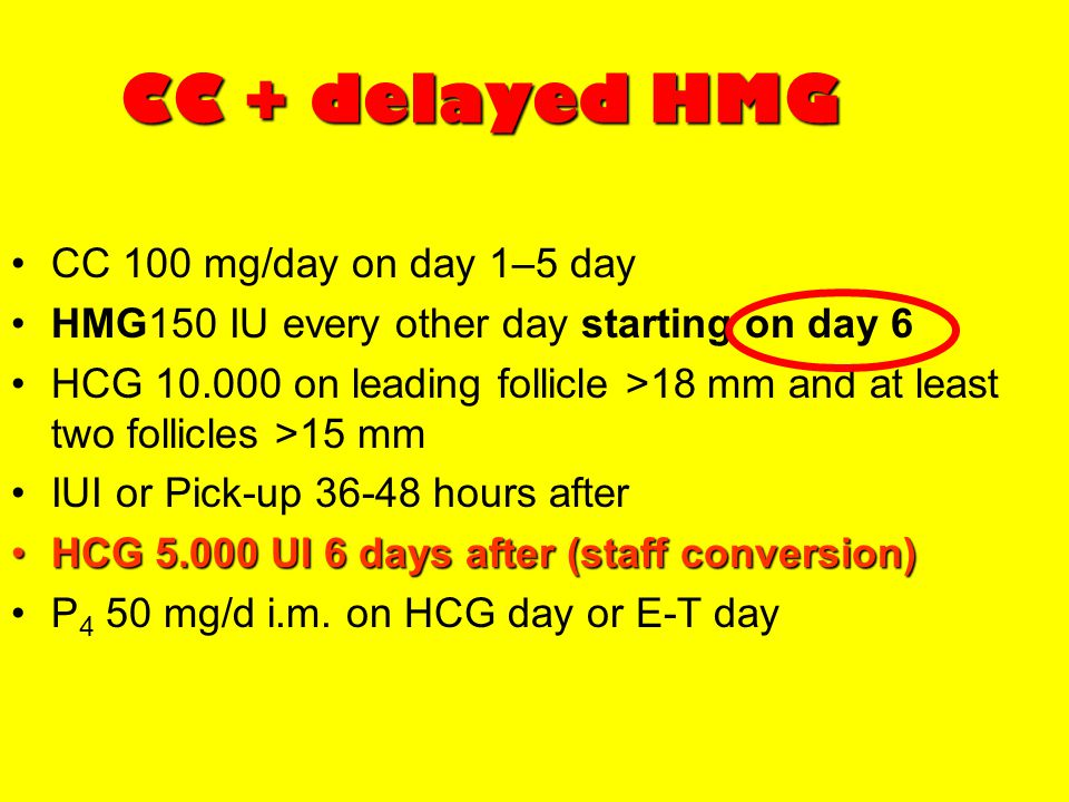 CC + delayed HMG CC 100 mg/day on day 1–5 day HMG150 IU every other day starting on day 6 HCG 10.000 on leading follicle >18 mm and at least two folli