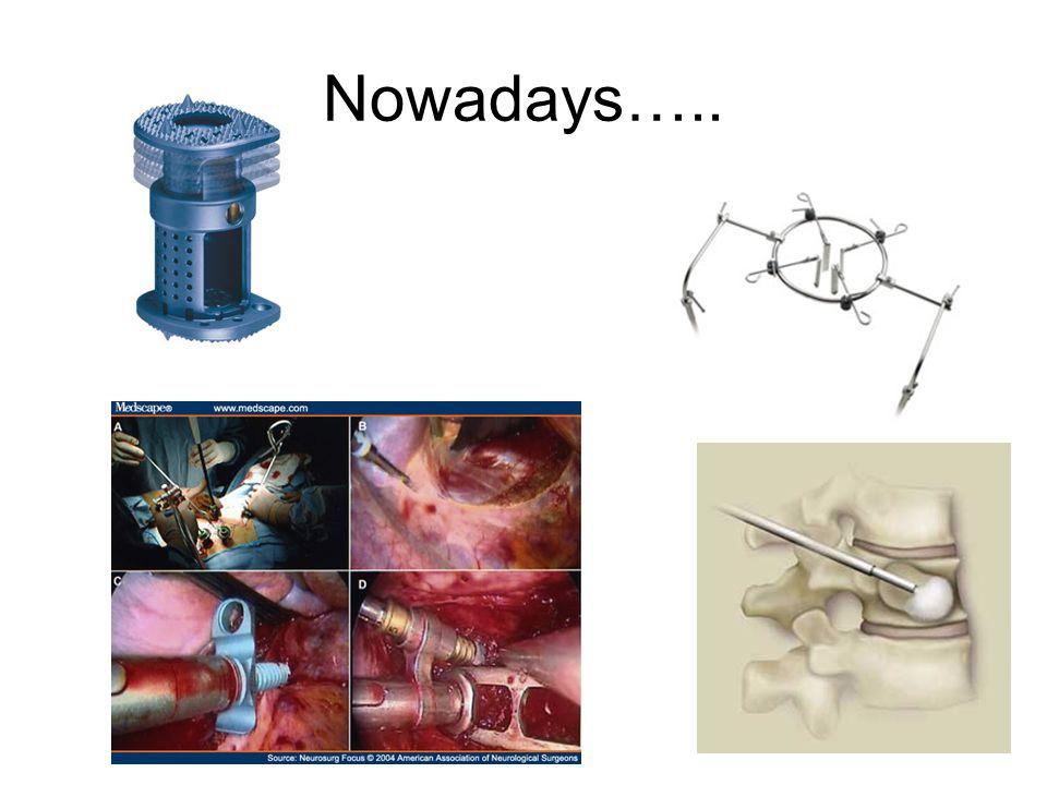 Nowadays…..