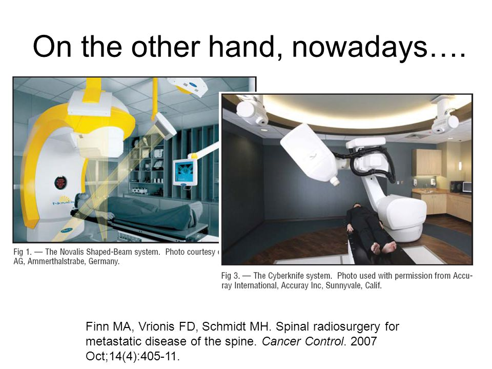 On the other hand, nowadays…. Finn MA, Vrionis FD, Schmidt MH. Spinal radiosurgery for metastatic disease of the spine. Cancer Control. 2007 Oct;14(4)