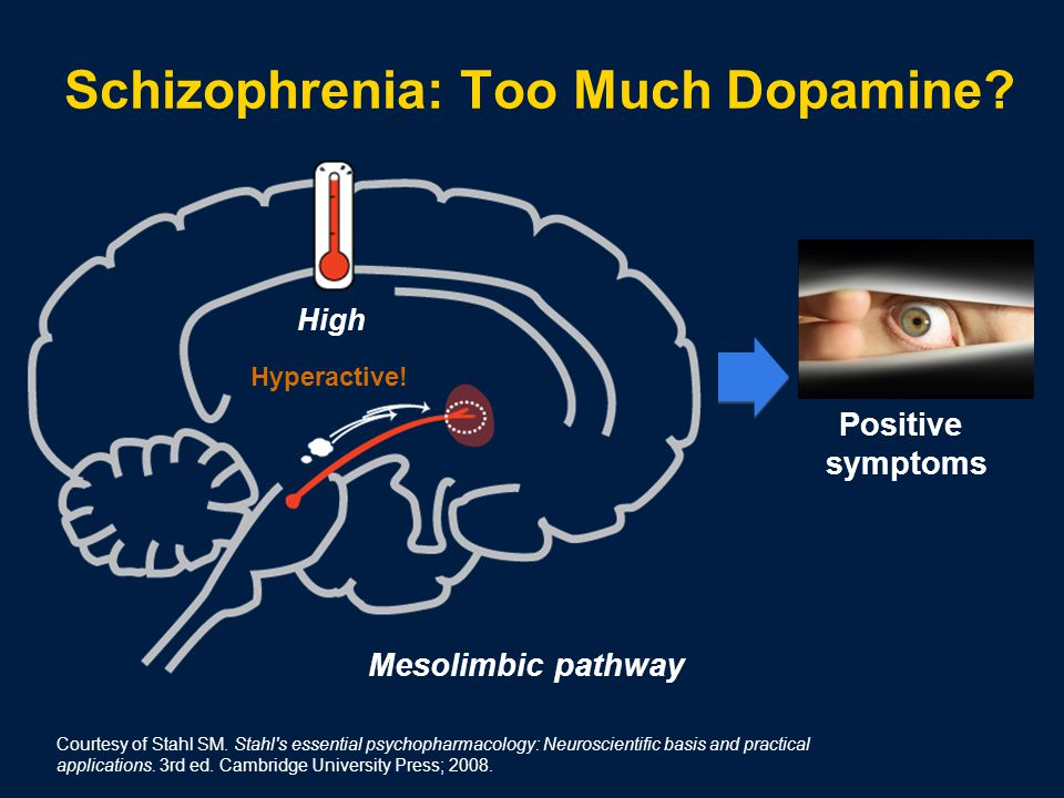 Positive symptoms Hyperactive. High Schizophrenia: Too Much Dopamine.