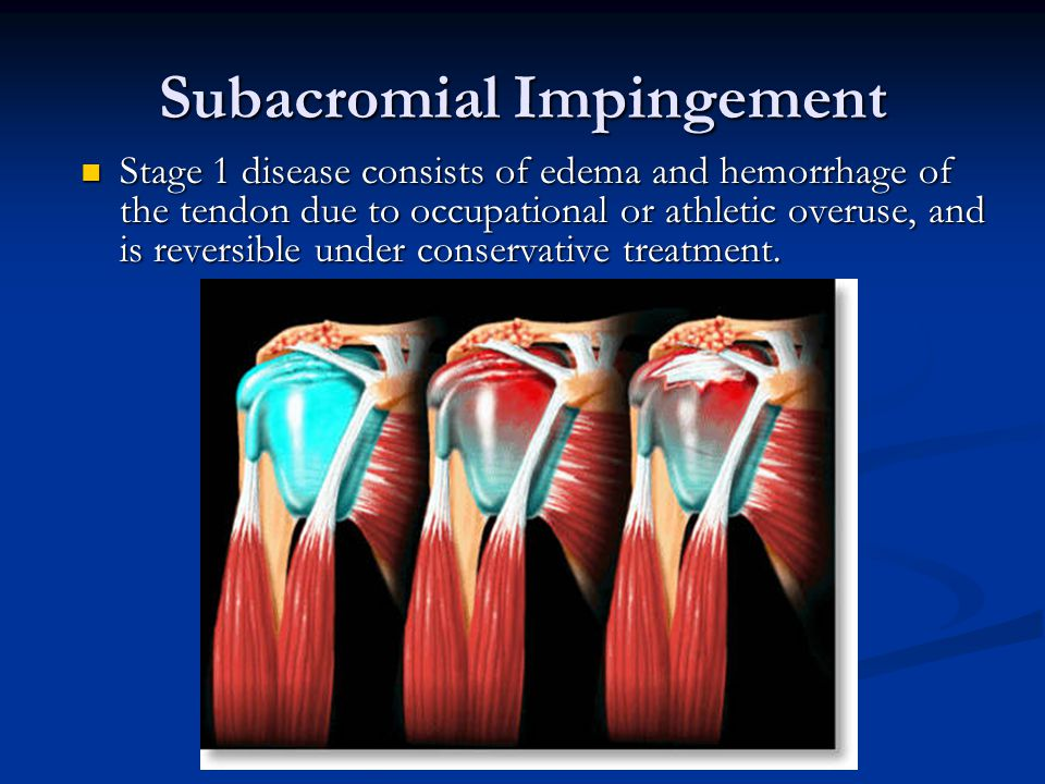 Subacromial Impingement Stage 1 disease consists of edema and hemorrhage of the tendon due to occupational or athletic overuse, and is reversible under conservative treatment.