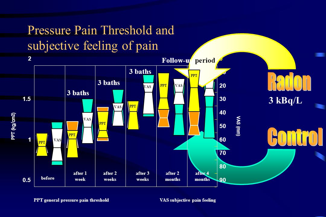 Pressure Pain Threshold and subjective feeling of pain 0.5 1 1.5 20 10 20 30 40 50 60 70 80 90 VAS before after 1 week after 2 weeks after 3 weeks aft