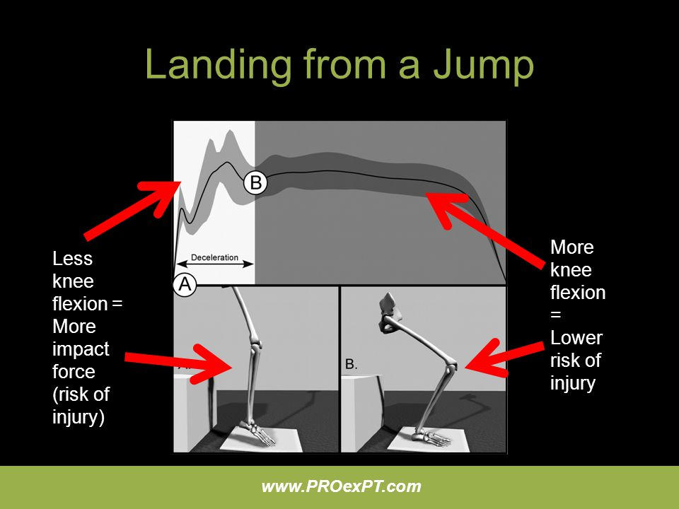 www.PROexPT.com Landing from a Jump Less knee flexion = More impact force (risk of injury) More knee flexion = Lower risk of injury