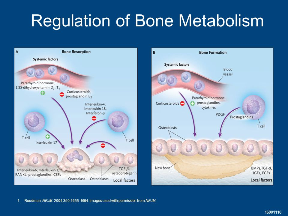 16001110 Regulation of Bone Metabolism 1.Roodman. NEJM.