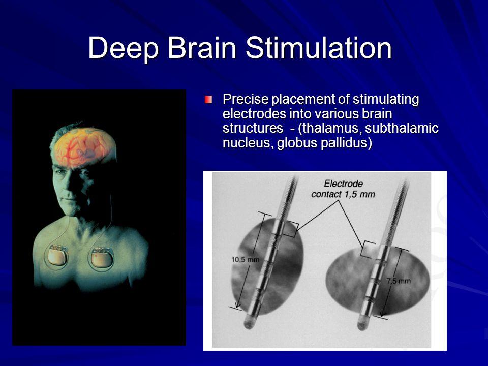 Indications FDA approved: –Essential Tremor (Vim thal) –Parkinson's Disease (STN, GPi, Vim) FDA HDE: –Dystonia (GPi, STN) –OCD (AlIC) Possible future indications: –Tourette's (CM thal, GPi) –Depression (ACC ) –Cluster headache (posterior hypothalamus) –Epilepsy (medial temp, ant thal) –Chorea (HD, neuroacanthocytosis, etc)