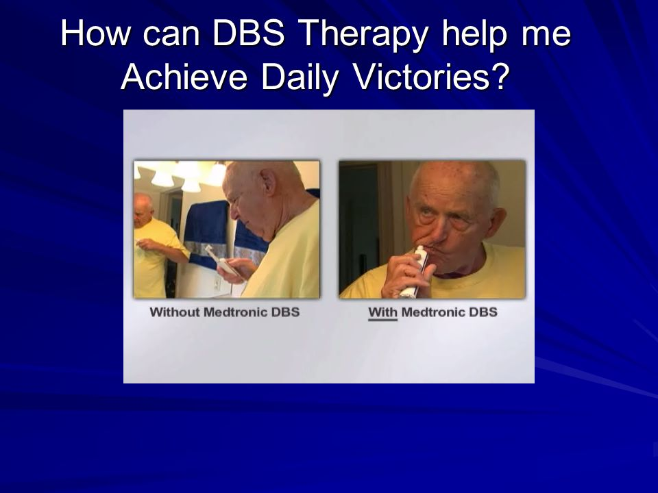 How can DBS Therapy help me Achieve Daily Victories