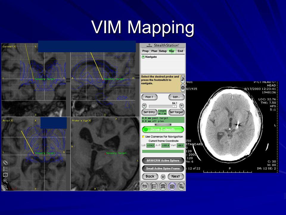 VIM Mapping