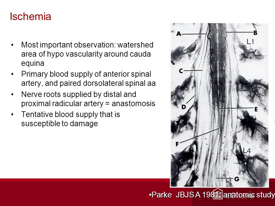 Ischemia Most important observation: watershed area of hypo vascularity around cauda equina Primary blood supply of anterior spinal artery, and paired dorsolateral spinal aa Nerve roots supplied by distal and proximal radicular artery = anastomosis Tentative blood supply that is susceptible to damage Parke JBJS A 1981: anatomic studyParke JBJS A 1981: anatomic study