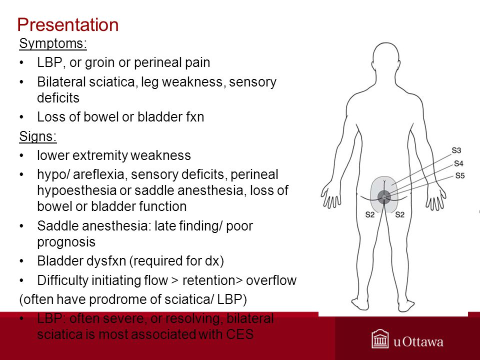 Presentation Symptoms: LBP, or groin or perineal pain Bilateral sciatica, leg weakness, sensory deficits Loss of bowel or bladder fxn Signs: lower extremity weakness hypo/ areflexia, sensory deficits, perineal hypoesthesia or saddle anesthesia, loss of bowel or bladder function Saddle anesthesia: late finding/ poor prognosis Bladder dysfxn (required for dx) Difficulty initiating flow > retention> overflow (often have prodrome of sciatica/ LBP) LBP: often severe, or resolving, bilateral sciatica is most associated with CES