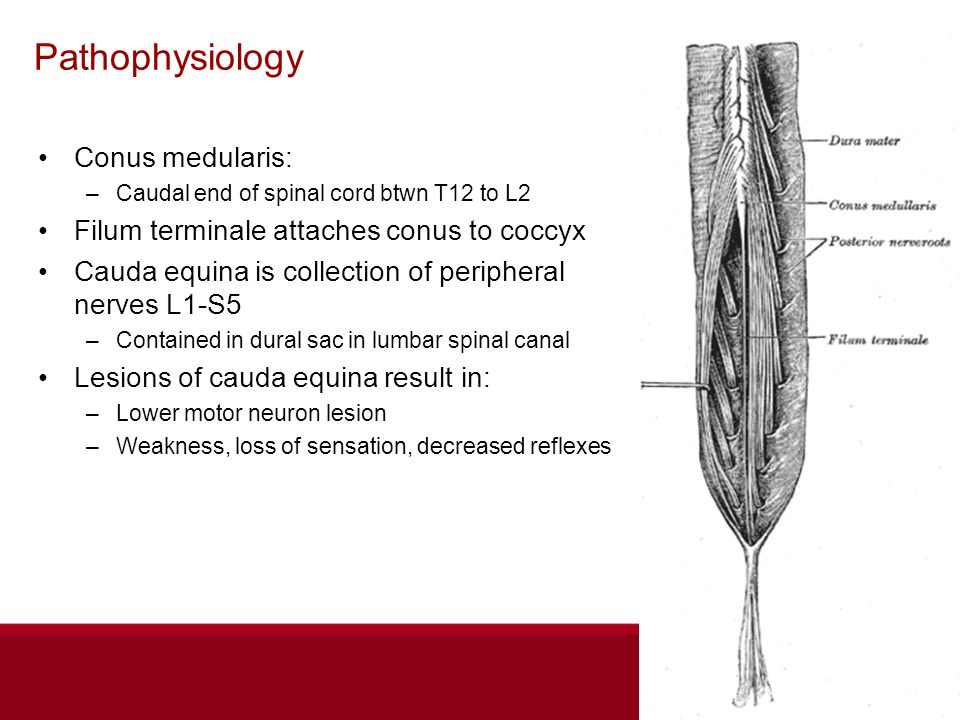 Pathophysiology Conus medularis: –Caudal end of spinal cord btwn T12 to L2 Filum terminale attaches conus to coccyx Cauda equina is collection of peripheral nerves L1-S5 –Contained in dural sac in lumbar spinal canal Lesions of cauda equina result in: –Lower motor neuron lesion –Weakness, loss of sensation, decreased reflexes
