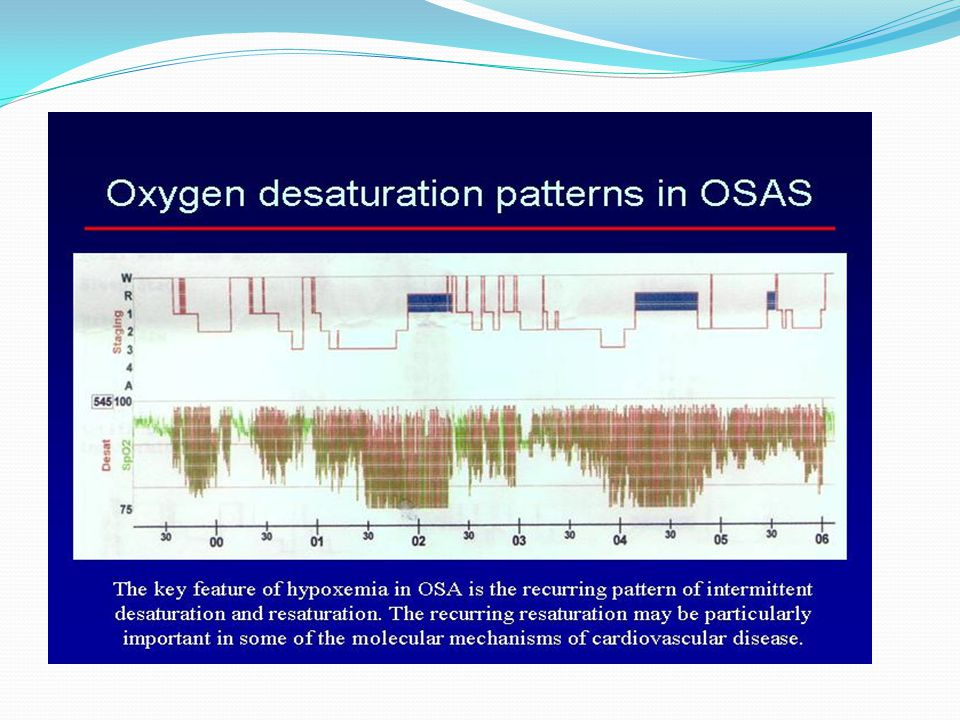 OSAS - INFLAMMATION Atherosclerosis has been found in OSA patients free of other cardiovascular risk factors and is related to the severity of nocturnal hypoxia.