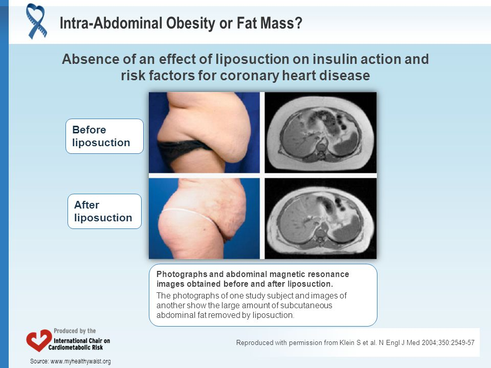 Source: www.myhealthywaist.org Reproduced with permission from Klein S et al. N Engl J Med 2004;350:2549-57 Intra-Abdominal Obesity or Fat Mass? Absen