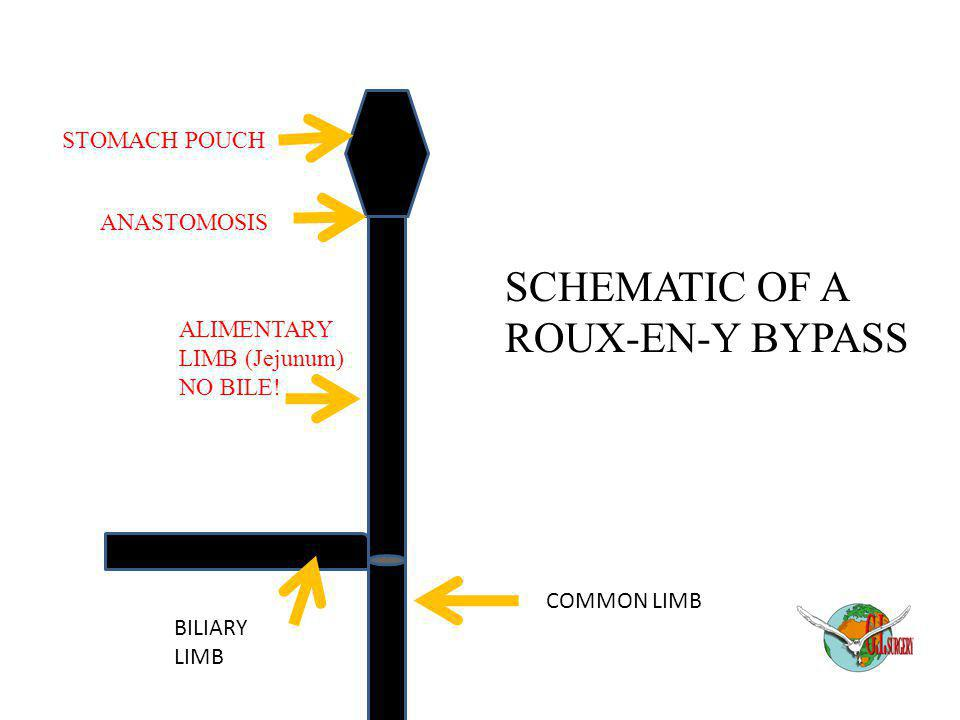 STOMACH POUCH ANASTOMOSIS ALIMENTARY LIMB (Jejunum) NO BILE! BILIARY LIMB COMMON LIMB SCHEMATIC OF A ROUX-EN-Y BYPASS