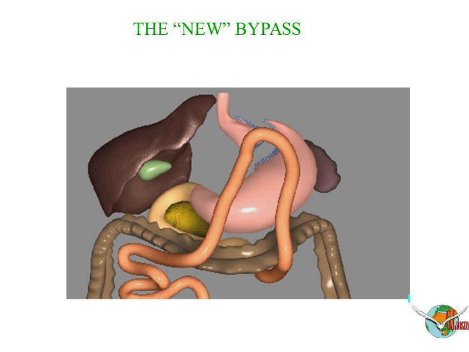 "THE ""NEW"" BYPASS"