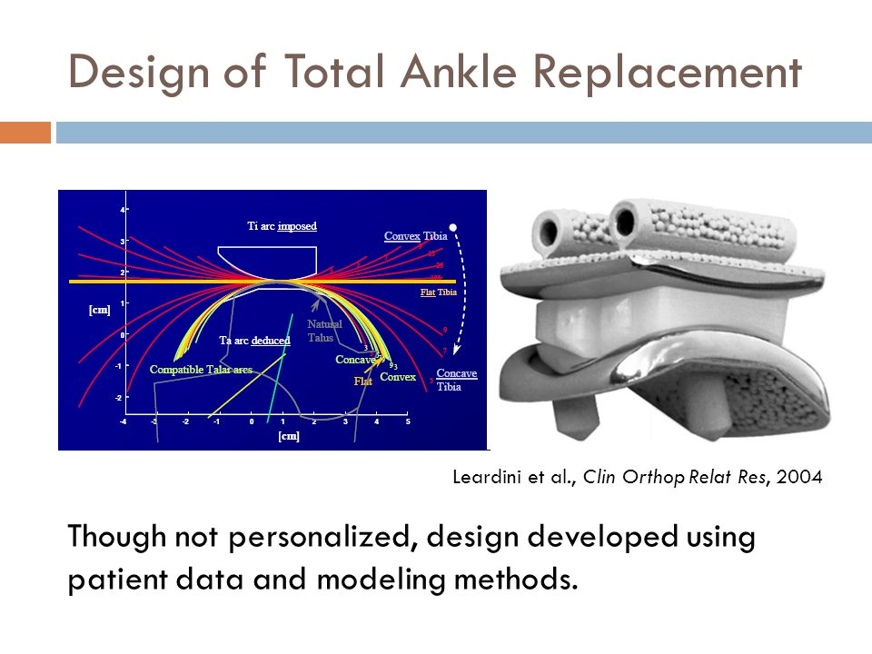 Design of Total Ankle Replacement Though not personalized, design developed using patient data and modeling methods.