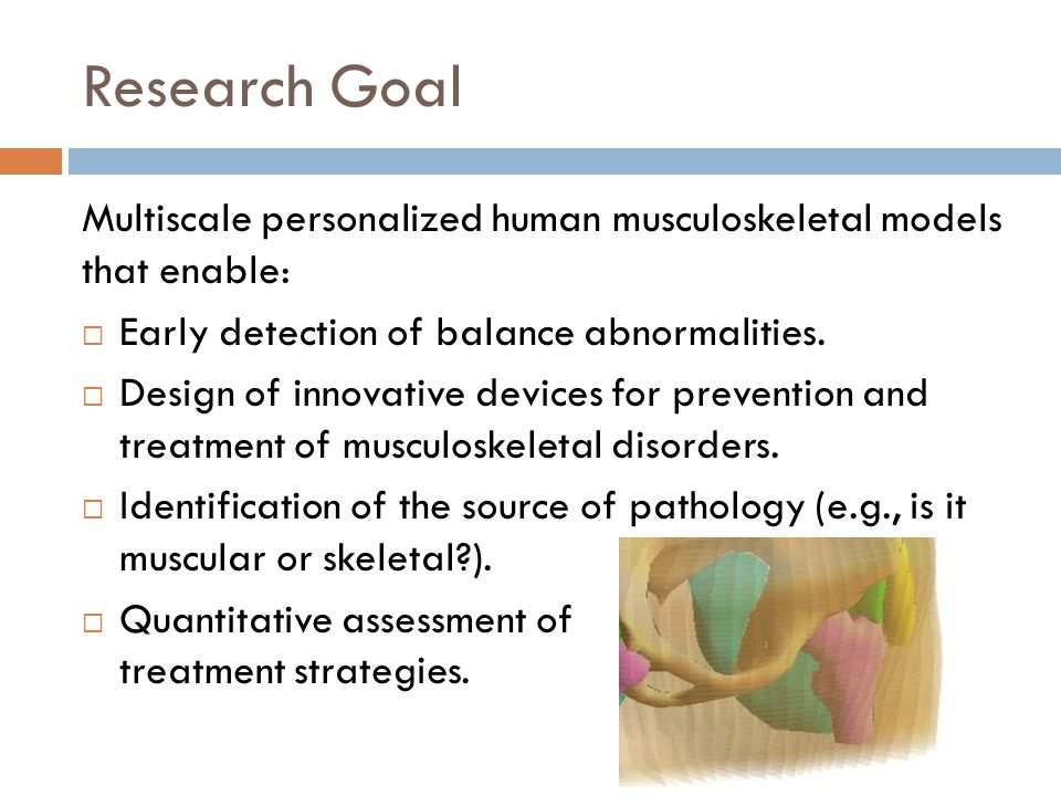 Research Goal Multiscale personalized human musculoskeletal models that enable:  Early detection of balance abnormalities.