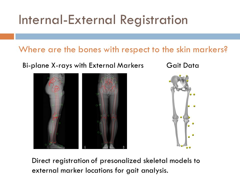 Internal-External Registration Direct registration of presonalized skeletal models to external marker locations for gait analysis.