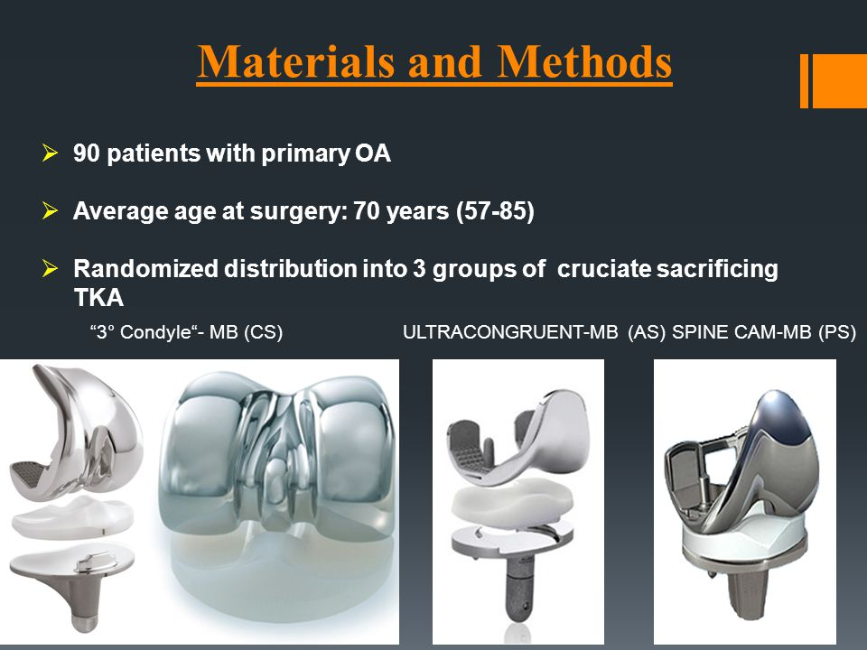 "Materials and Methods ""3° Condyle""- MB (CS) ULTRACONGRUENT-MB (AS) SPINE CAM-MB (PS)  90 patients with primary OA  Average age at surgery: 70 years"