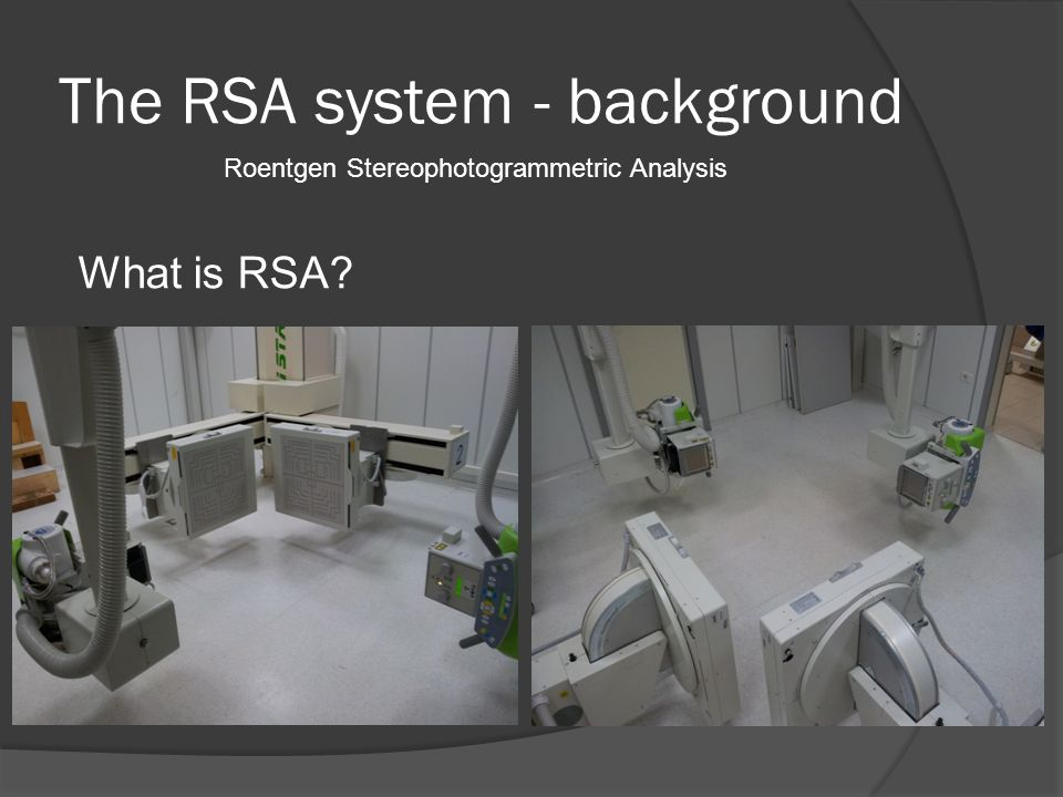 The RSA system - background What is RSA Roentgen Stereophotogrammetric Analysis