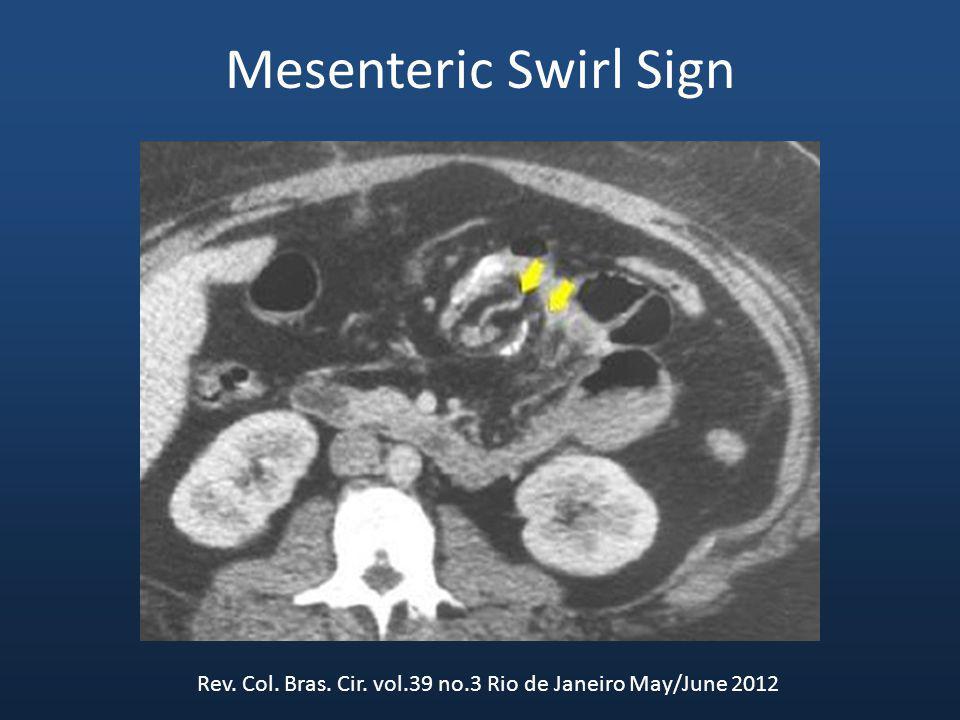 Mesenteric Swirl Sign Rev. Col. Bras. Cir. vol.39 no.3 Rio de Janeiro May/June 2012