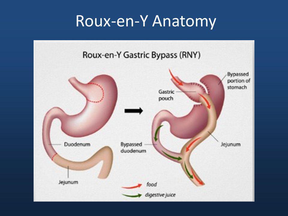 Roux-en-Y Anatomy