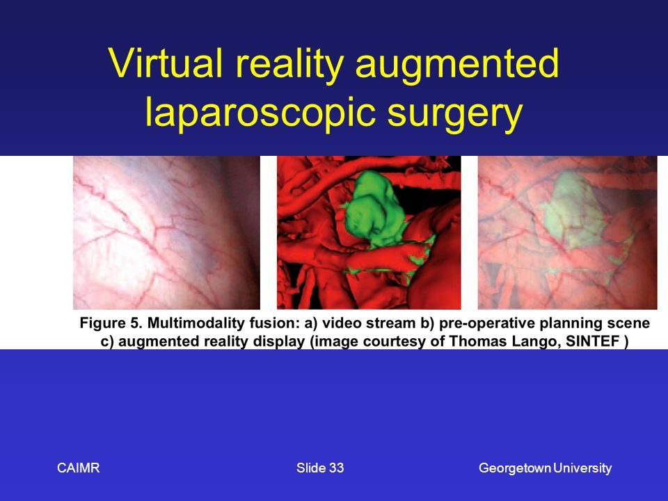 Virtual reality augmented laparoscopic surgery CAIMRGeorgetown UniversitySlide 33