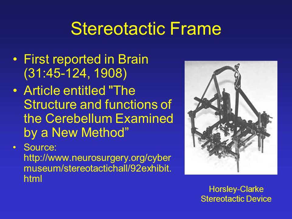 Stereotactic Frame First reported in Brain (31:45-124, 1908) Article entitled