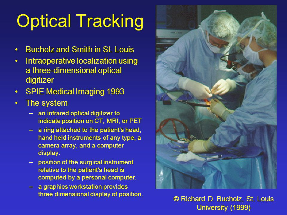 Optical Tracking Bucholz and Smith in St. Louis Intraoperative localization using a three-dimensional optical digitizer SPIE Medical Imaging 1993 The